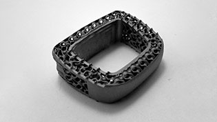 3D printed structure for growing bone